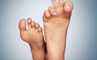 Примета: чешутся пальцы на ноге