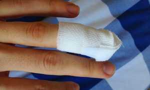 Примета: к чему порезать палец на руке