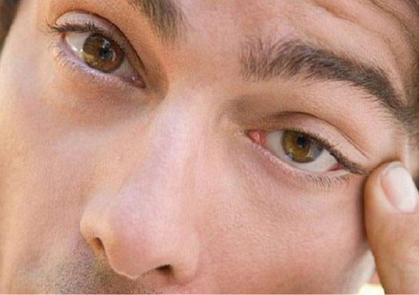 Мужчина трет левый глаз