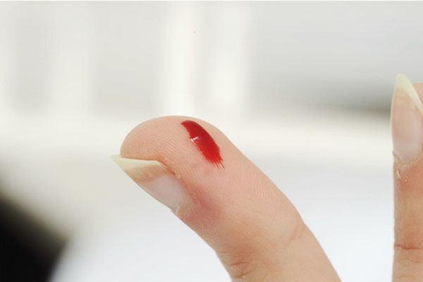 Пораненный палец на руке