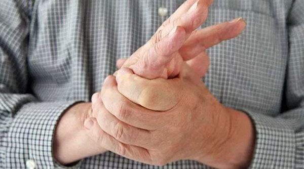 Мужчина левой рукой трогает ладонь на правой руке