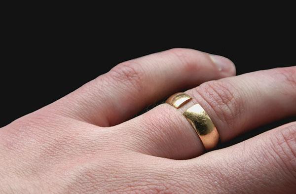 Треснуло кольцо на пальце