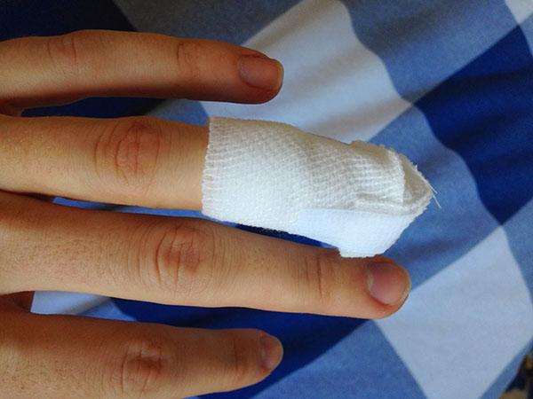 Пораненный палец